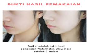TESTIMONI WATERMELON GLOW MASK